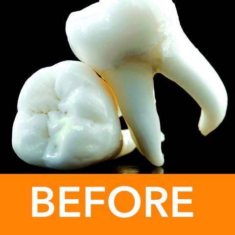 Teeth_before-640x480